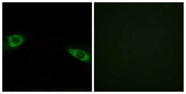 RPS4Y1 Antibody (PA5-38976)