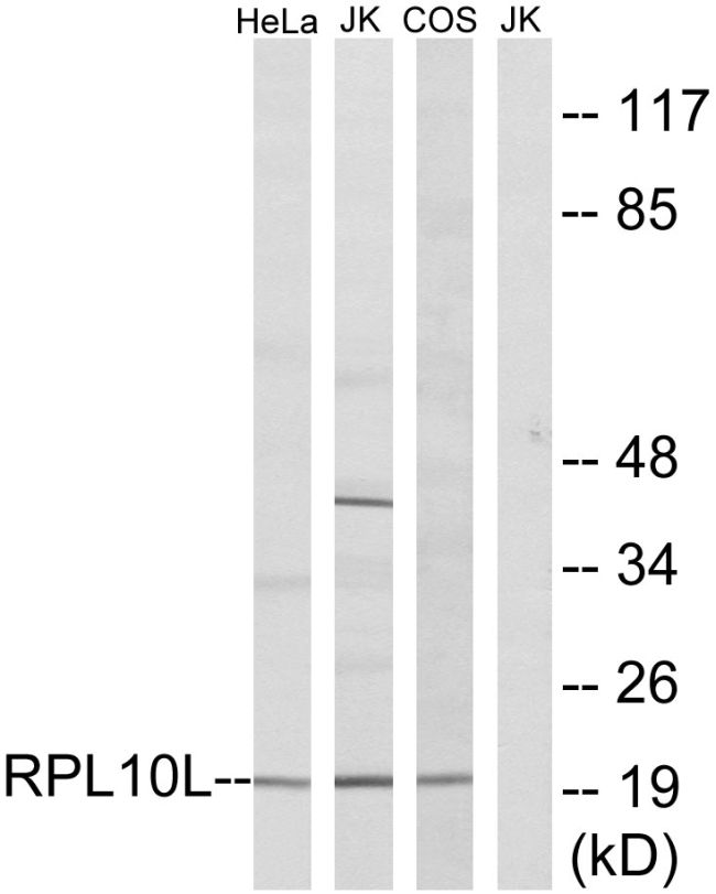 RPL10L Antibody (PA5-38981)