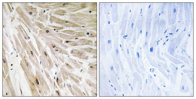 RPL22 Antibody (PA5-38983)
