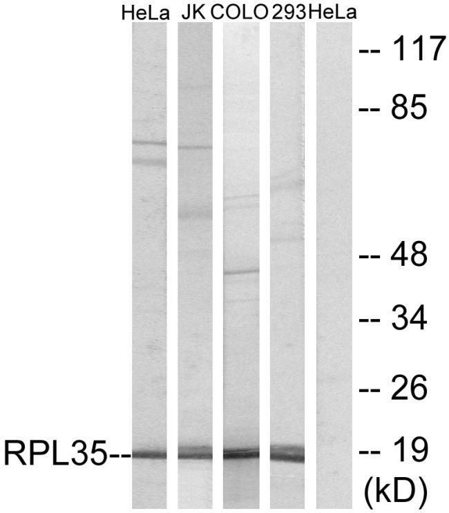 RPL35 Antibody (PA5-38989)