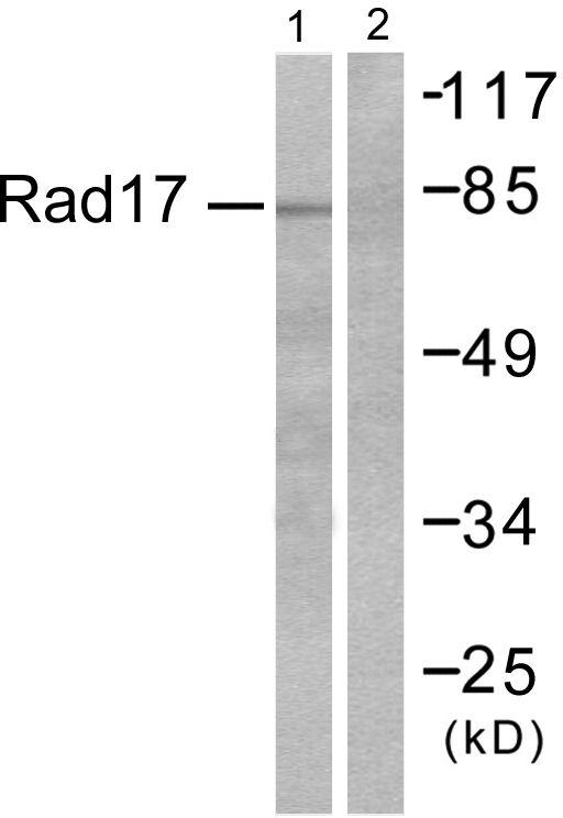 ABHD14A Antibody (PA5-38996) in Western Blot
