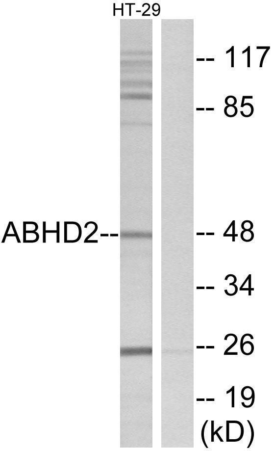 ABHD2 Antibody (PA5-38997) in Western Blot