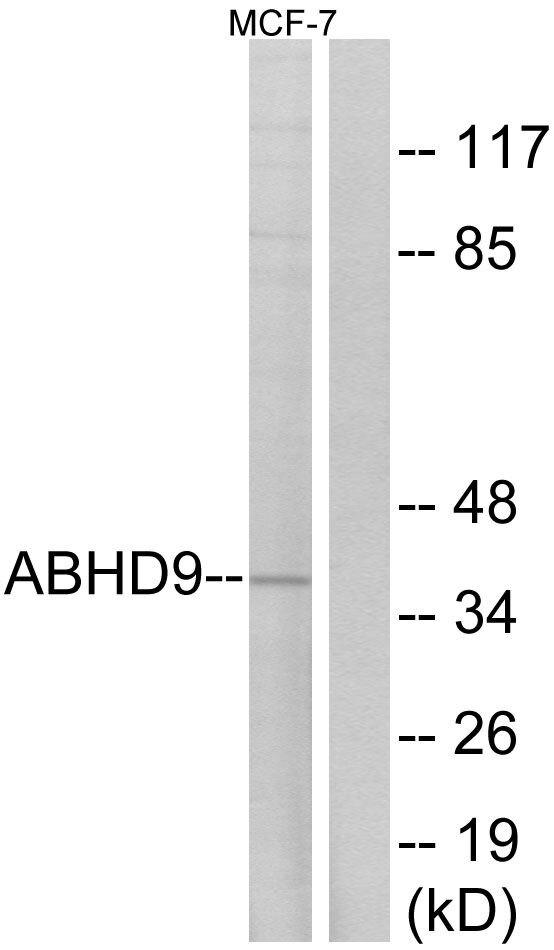 ABHD9 Antibody (PA5-39001) in Western Blot