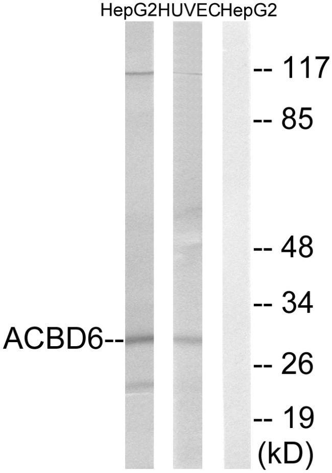 ACBD6 Antibody (PA5-39004)