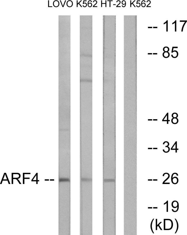 ARF4 Antibody (PA5-39010) in Western Blot