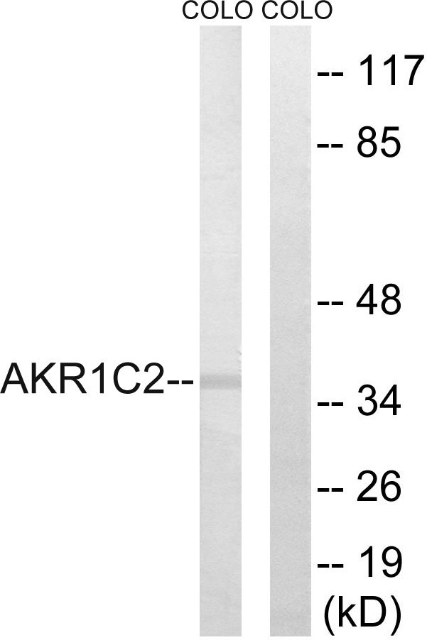 AKR1C2 Antibody (PA5-39012) in Western Blot