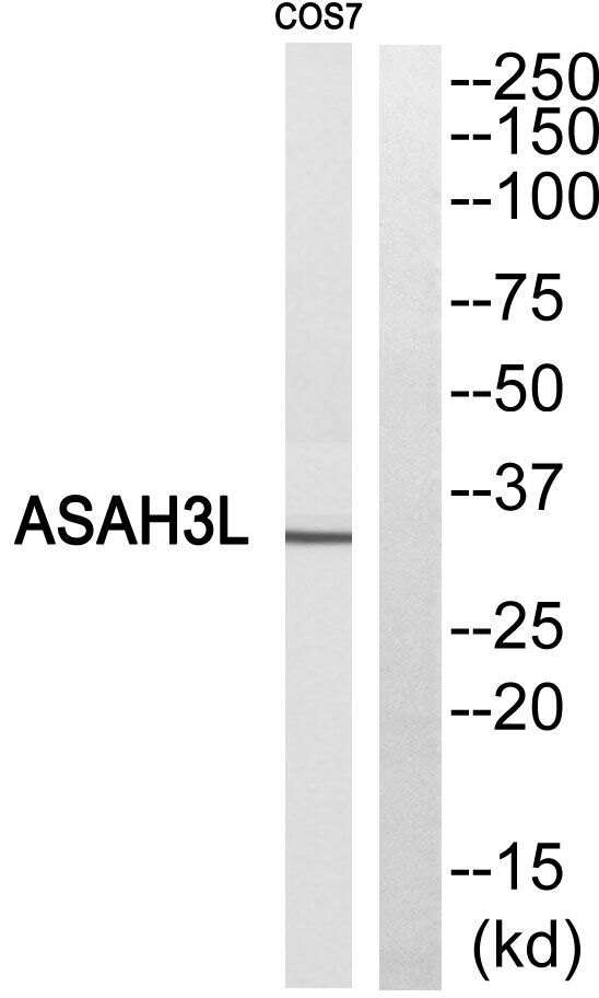 ACER2 Antibody (PA5-39016) in Western Blot