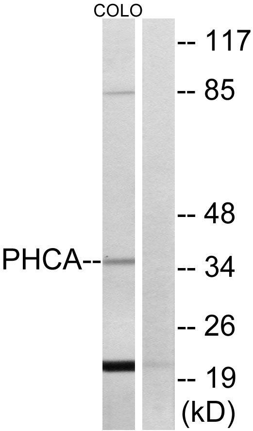 ACER3 Antibody (PA5-39017) in Western Blot