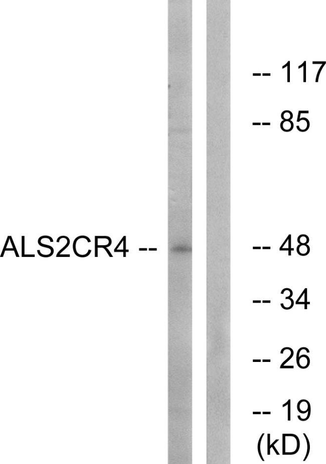 TMEM237 Antibody (PA5-39021)