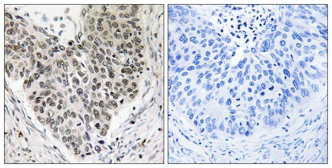 CARF Antibody (PA5-39022)