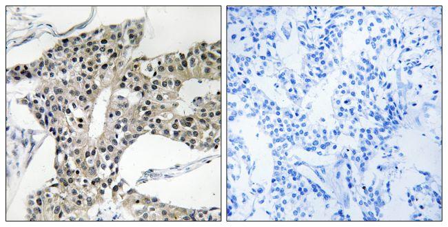 ARSK Antibody (PA5-39032)