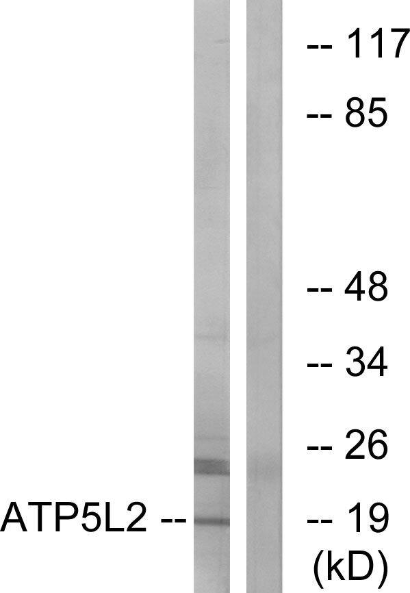 ATP5L2 Antibody (PA5-39037) in Western Blot