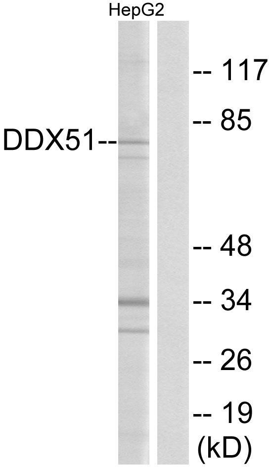 DDX51 Antibody (PA5-39042) in Western Blot