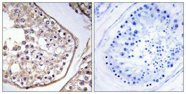 BAGE3 Antibody (PA5-39048) in Immunohistochemistry (Paraffin)