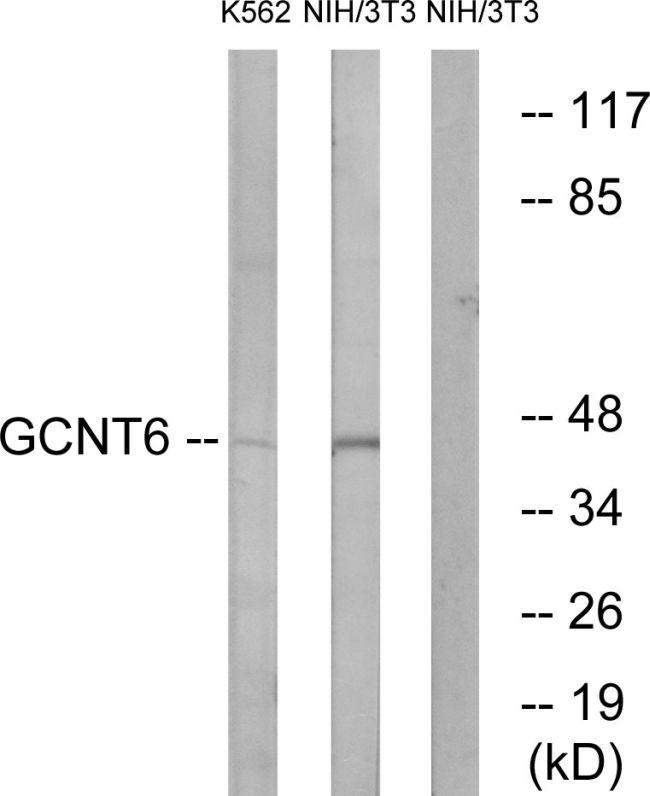 GCNT6 Antibody (PA5-39051)
