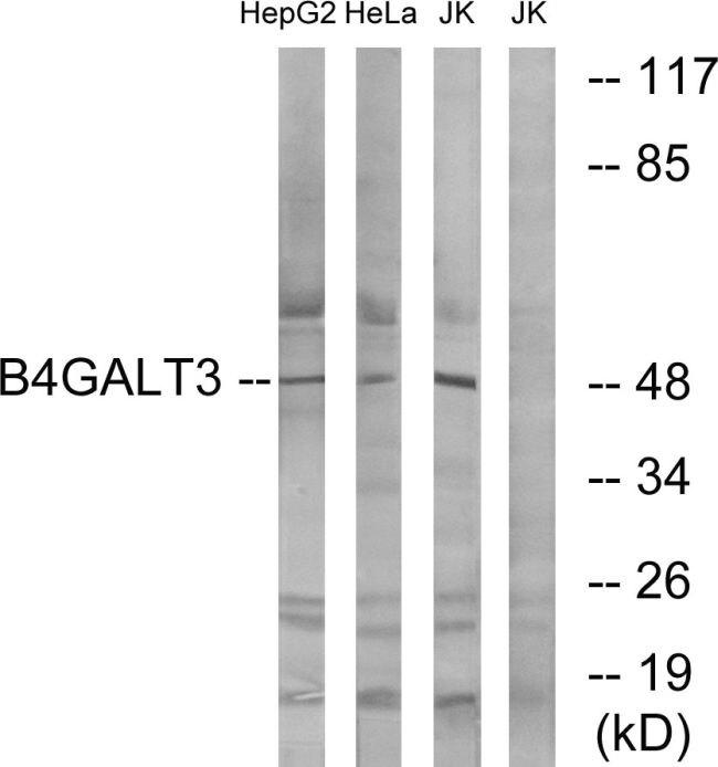 B4GALT3 Antibody (PA5-39058) in Western Blot