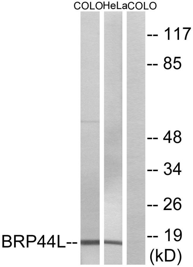 BRP44L Antibody (PA5-39062) in Western Blot