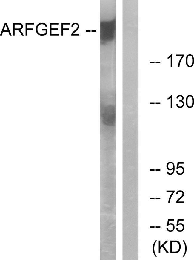 ARFGEF2 Antibody (PA5-39064) in Western Blot
