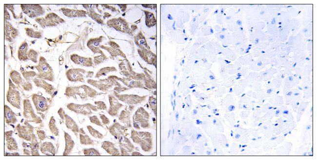 BRWD3 Antibody (PA5-39065) in Immunohistochemistry (Paraffin)