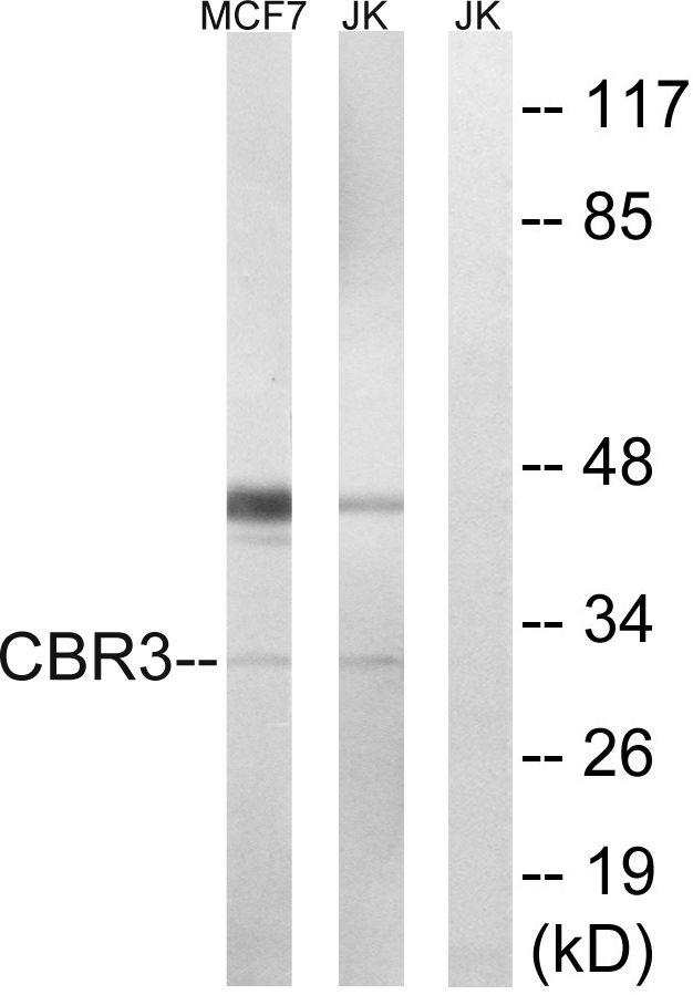 CBR3 Antibody (PA5-39079) in Western Blot