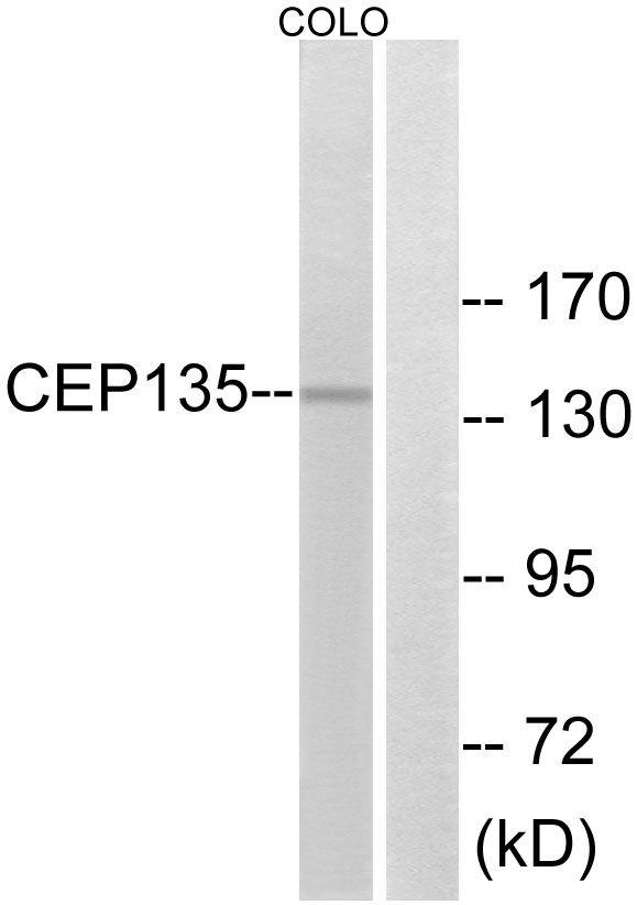CEP135 Antibody (PA5-39089) in Western Blot