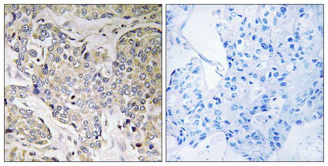 CEP41 Antibody (PA5-39090)