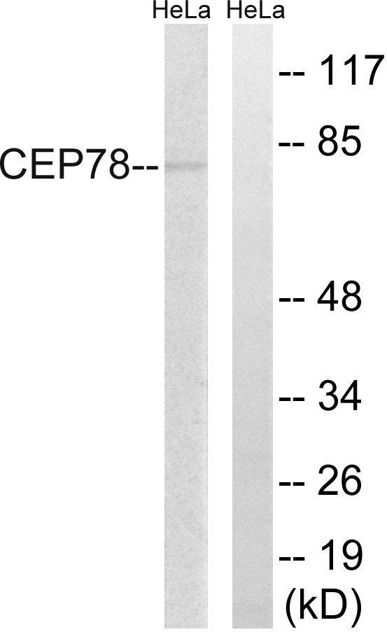 CEP78 Antibody (PA5-39092) in Western Blot