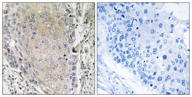 Cerebellin 3 Antibody (PA5-39095) in Immunohistochemistry (Paraffin)