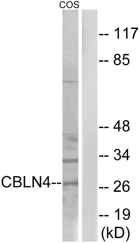 Cerebellin 4 Antibody (PA5-39096) in Western Blot