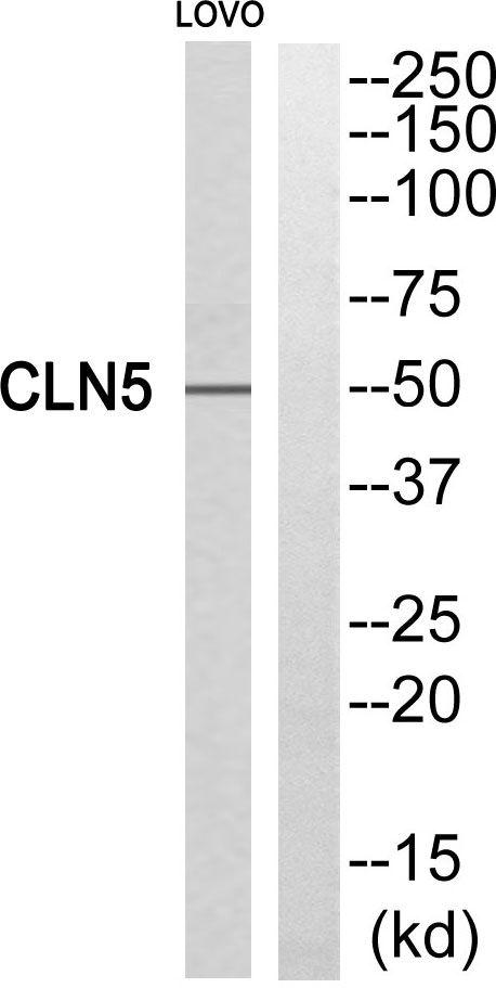 CLN5 Antibody (PA5-39098)