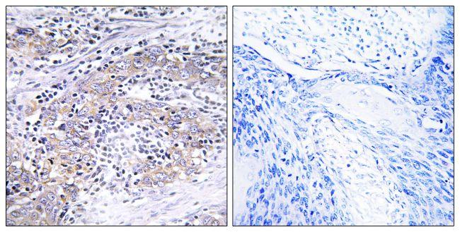 CLN6 Antibody (PA5-39099)