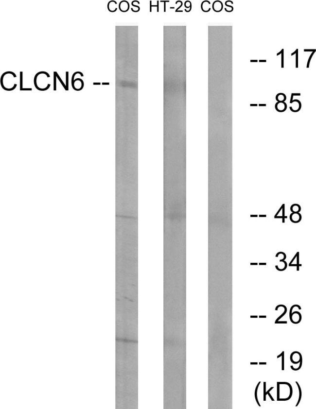 CLCN6 Antibody (PA5-39101)