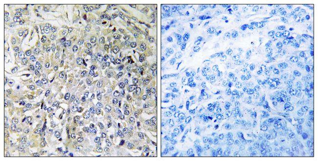CSGALNACT2 Antibody (PA5-39103)