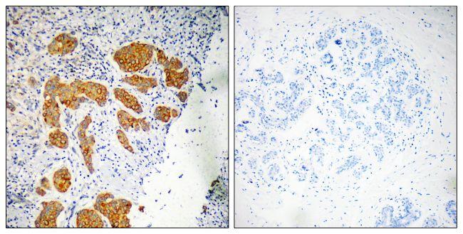 CMTM4 Antibody (PA5-39107)