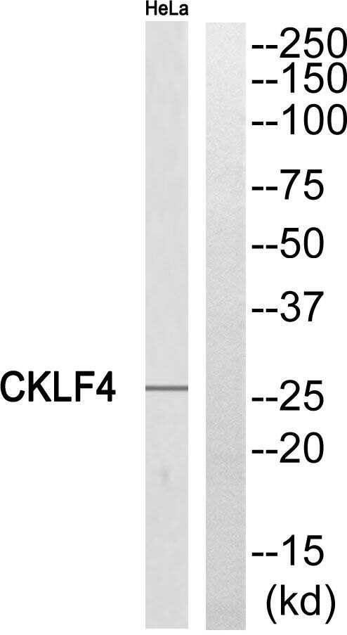 CMTM4 Antibody (PA5-39107) in Western Blot