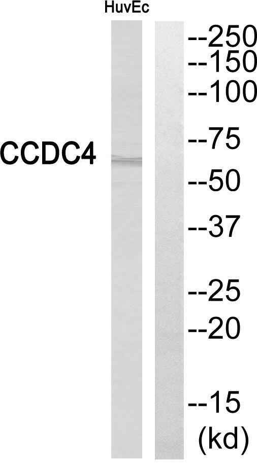 BEND4 Antibody (PA5-39113) in Western Blot