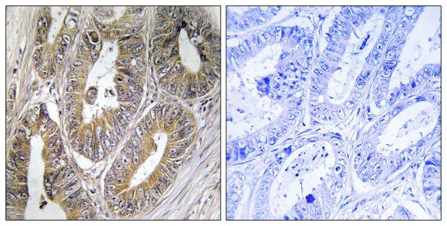 Cystatin 2 Antibody (PA5-39122) in Immunohistochemistry (Paraffin)