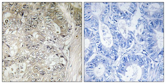 CST1 Antibody (PA5-39123) in Immunohistochemistry (Paraffin)