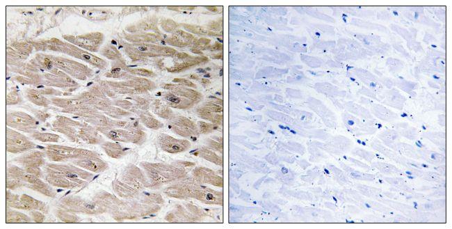 CCP2 Antibody (PA5-39124) in Immunohistochemistry (Paraffin)