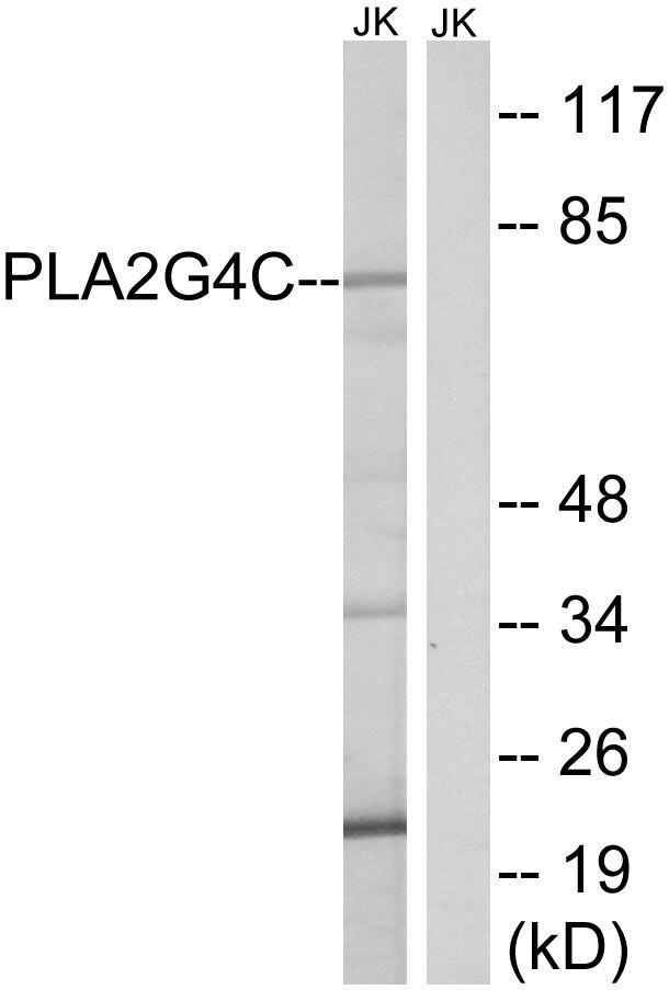 PLA2G4C Antibody (PA5-39128)