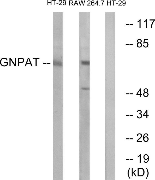 GNPAT Antibody (PA5-39135) in Western Blot