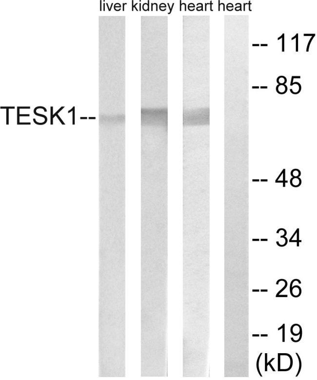 TESK1 Antibody (PA5-39143)