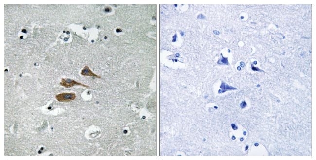 MARCH3 Antibody (PA5-39145) in Immunohistochemistry (Paraffin)