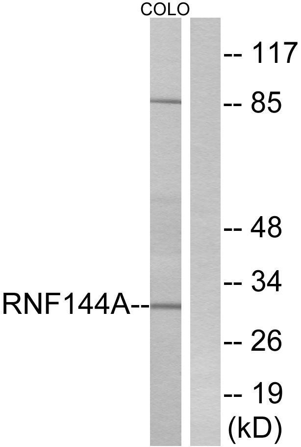 RNF144A Antibody (PA5-39151) in Western Blot