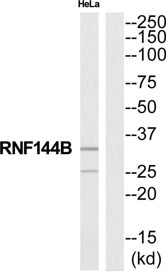 RNF144B Antibody (PA5-39152) in Western Blot