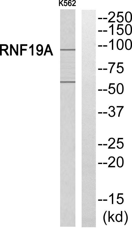 RNF19A Antibody (PA5-39154) in Western Blot