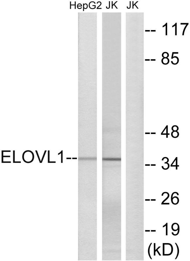 ELOVL1 Antibody (PA5-39159)