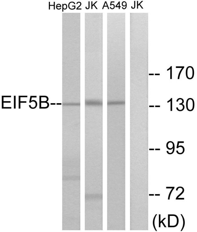 eIF5B Antibody (PA5-39166)