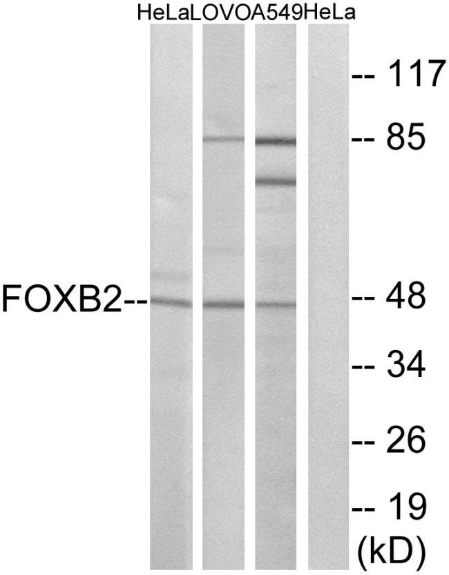 FOXB2 Antibody (PA5-39169) in Western Blot