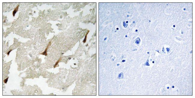 GPRIN2 Antibody (PA5-39178)